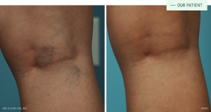 Sclerotherapy Treatment Lexington KY